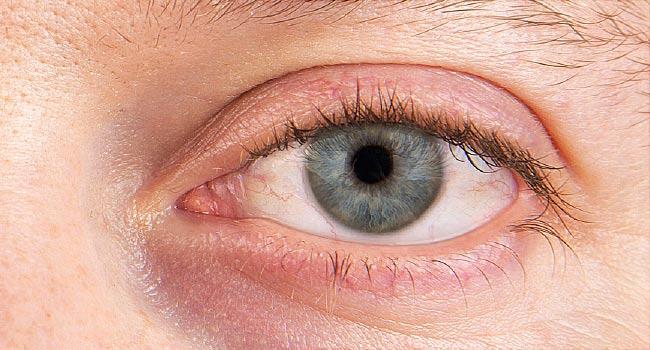 Dry Eyes, Why?